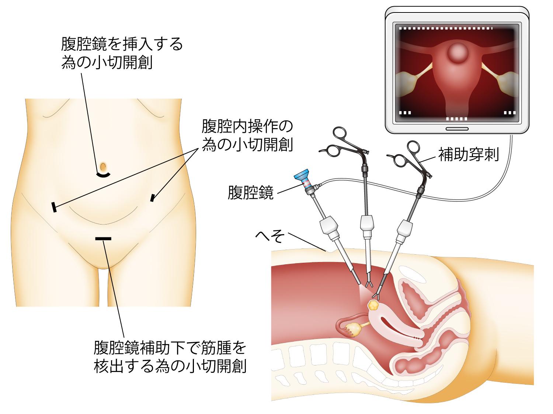 腹腔鏡手術の説明